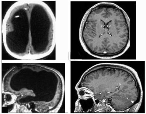 The large black space shows the fluid that replaced much of the patient's brain (left). For comparison, the images (right) show a typical brain without any abnormalities. Photo: Feuillet et al., The Lancet