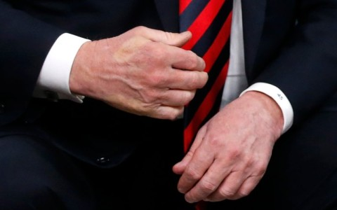 The imprint of French President Emmanuel Macron's thumb can be seen across the back of U.S. President Donald Trump's hand after they shook hands during a bilateral meeting at the G7 Summit in in Charlevoix, Quebec, Canada, June 8, 2018. Photo: REUTERS/Leah Millis